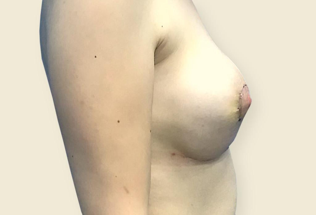 Obecnie asymetria piersi oraz piersi tubularne