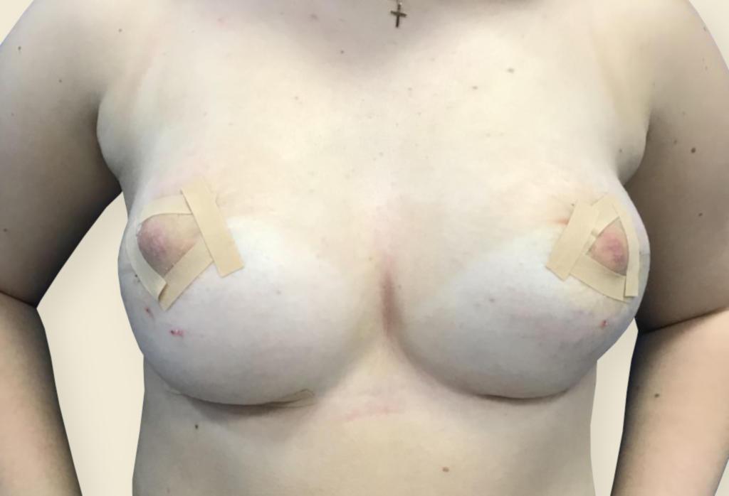 Jeden z najtrudniejszych zabiegów w chirurgii piersi — leczenie piersi tubularnych