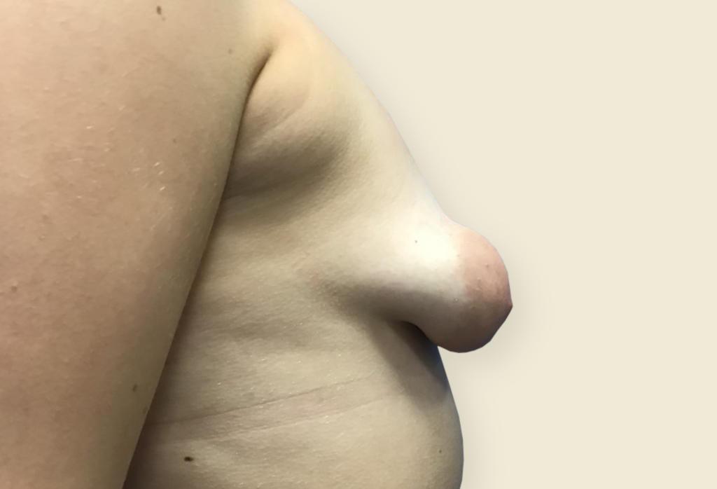 Leczenie piersi tubularnych