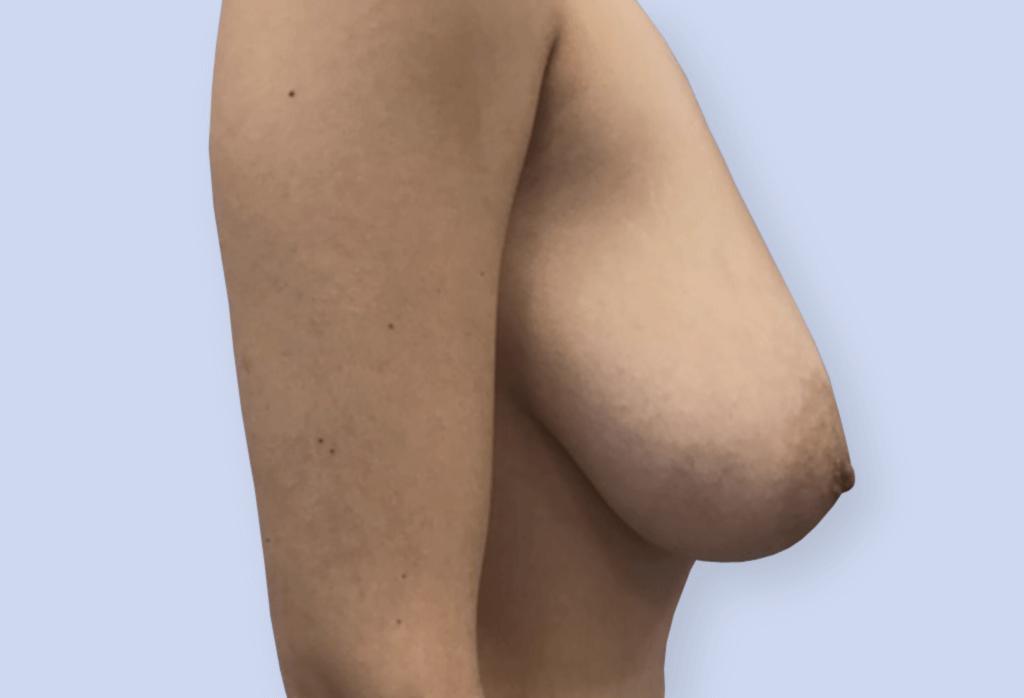 Before-Redukcja piersi