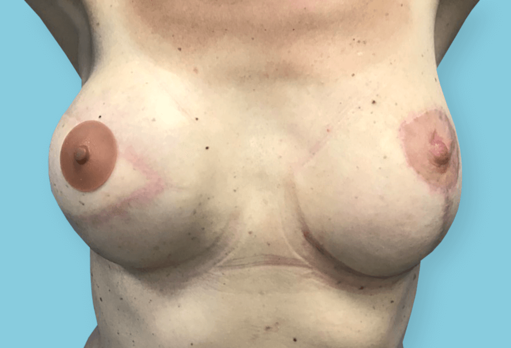 After-Symetryzacja piersi