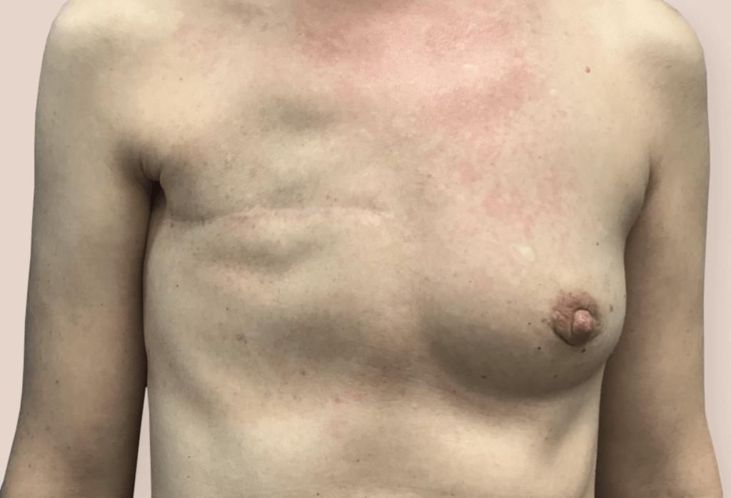 Stan po amputacji piersi prawej z powodu raka, po chemioterapii i radioterapii, mutacja BRCA