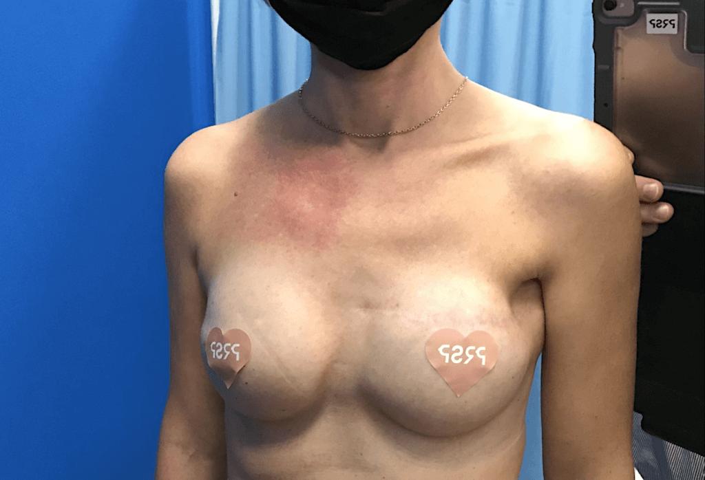 Rekonstrukcja piersi prawej płatem LD i protezą