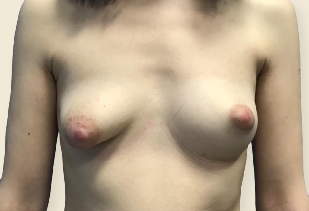 Before-Trudne piersi