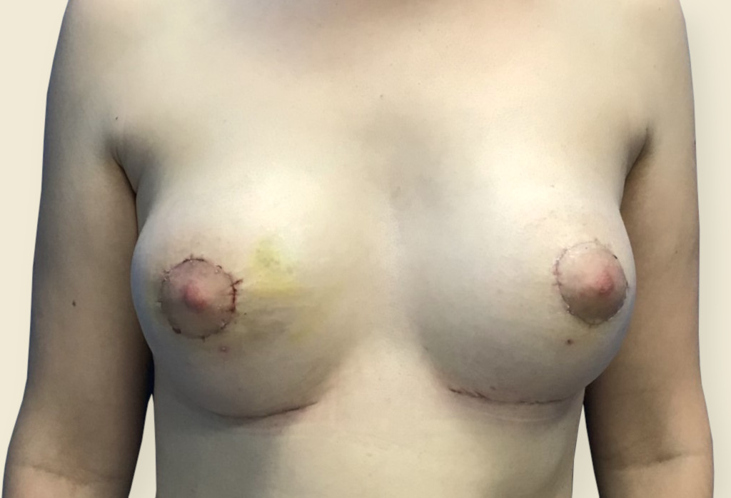 After-Trudne piersi