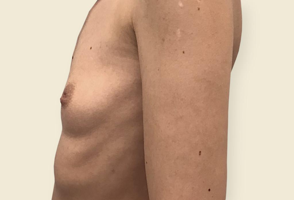 Deformacja klatki piersiowej, zanik gruczołu piersiowego, wciągniecie lewej brodawki sutkowej