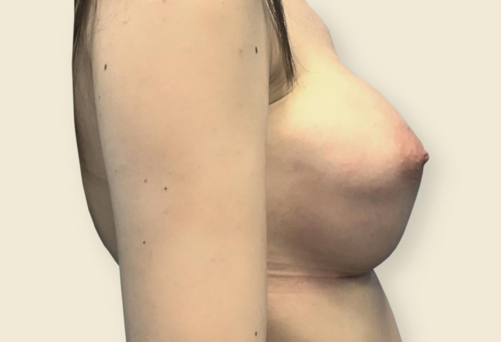 Rekonstrukcja piersi protezami okrągłymi B -lite 390 i rekonstrukcją lewej brodawki sutkowej