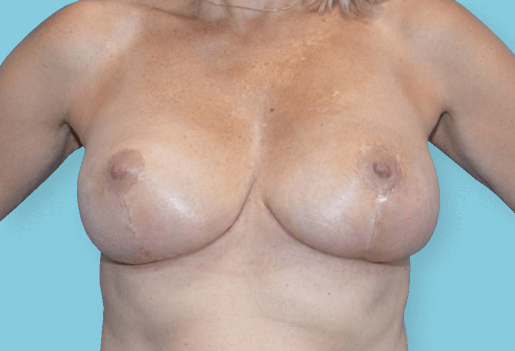 After-Symetryzacja piersi od 14 000 zł