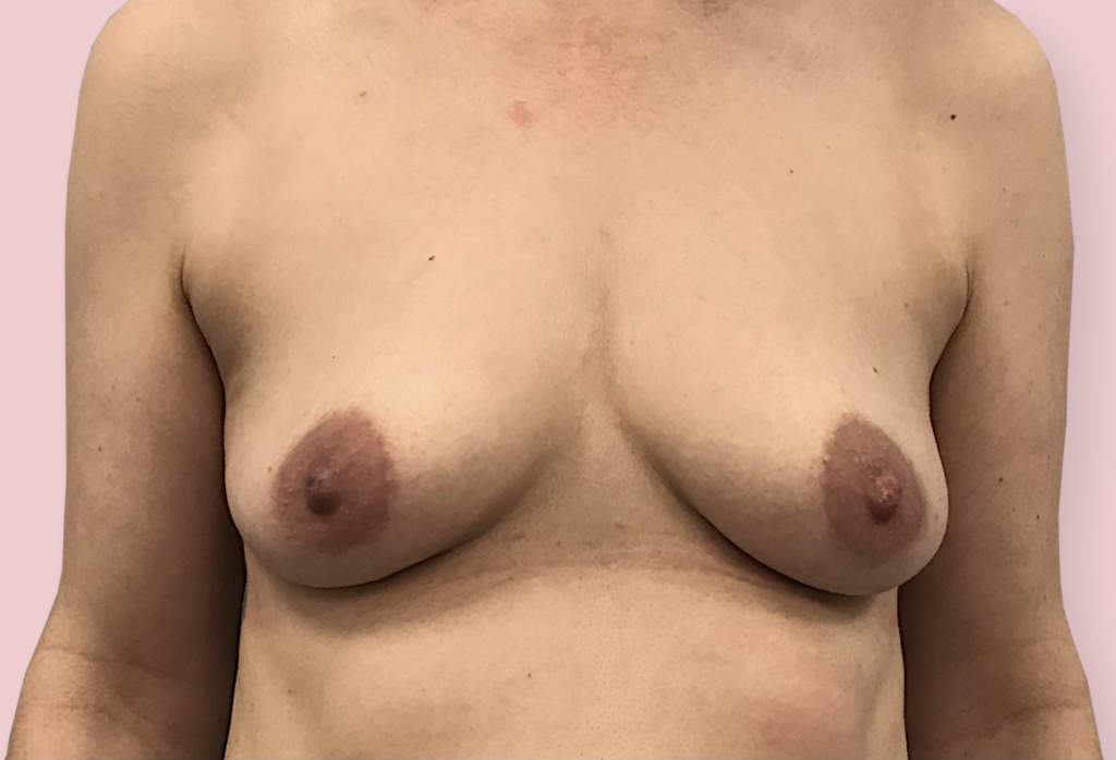 Before- Powiększanie piersi od 17 000 zł