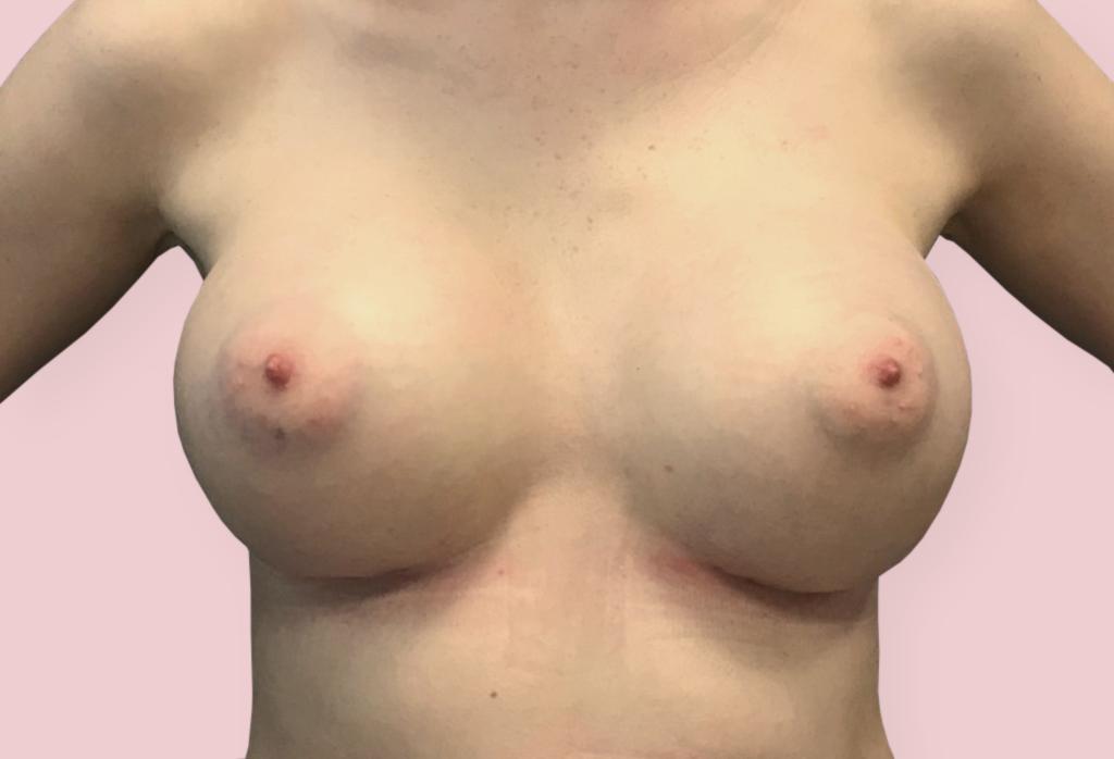 After- Powiększanie piersi od 17 000 zł