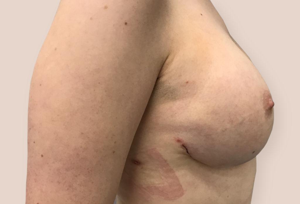Podskórna amputacja piersi z jednoczasową rekonstrukcją protezą okrągłą 380 i radioterapią