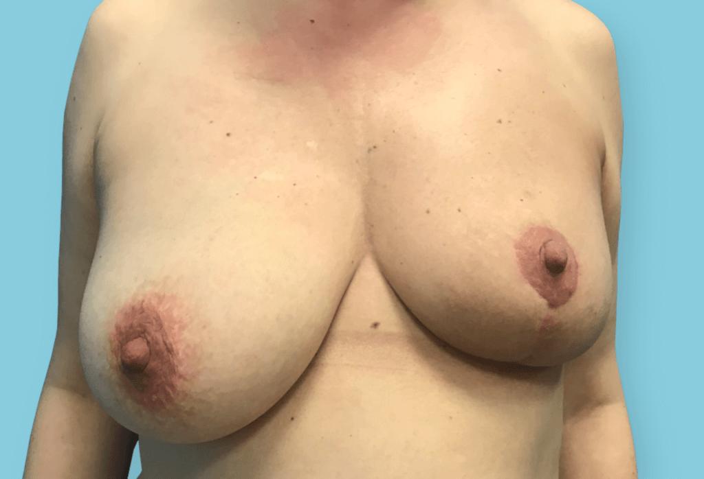 Before-Symetryzacja piersi od 14 000 zł