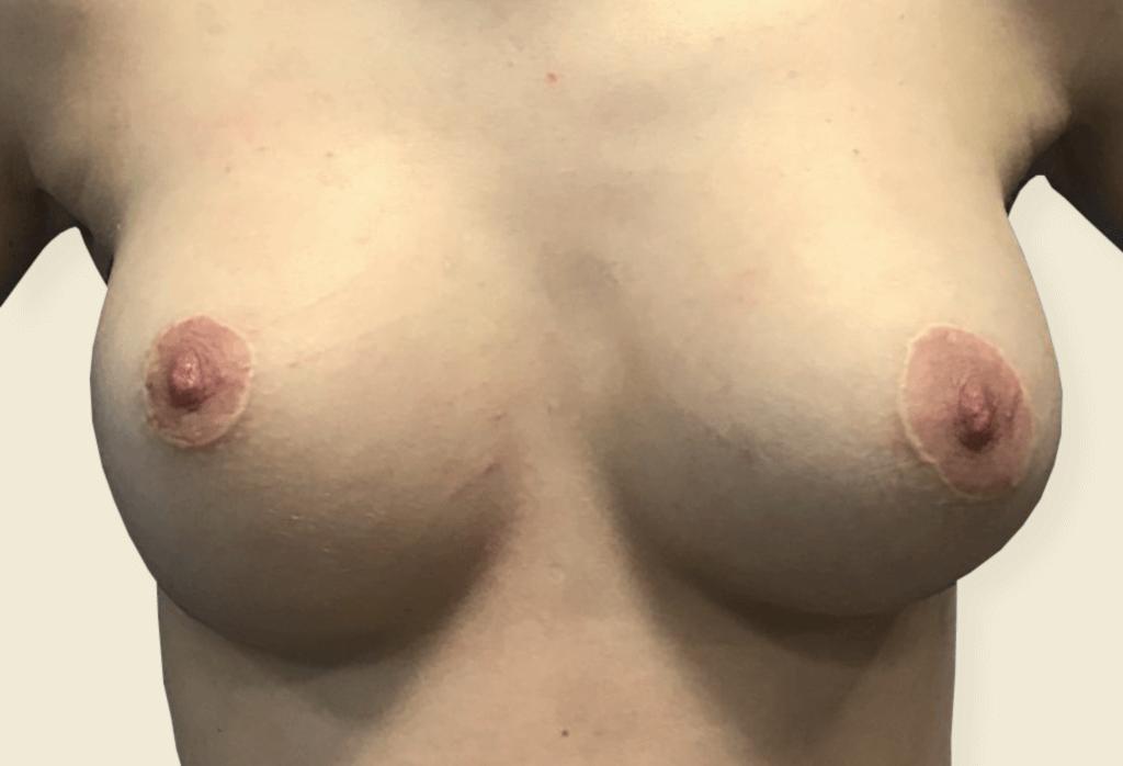 After-Trudne piersi - wycena indywidualna