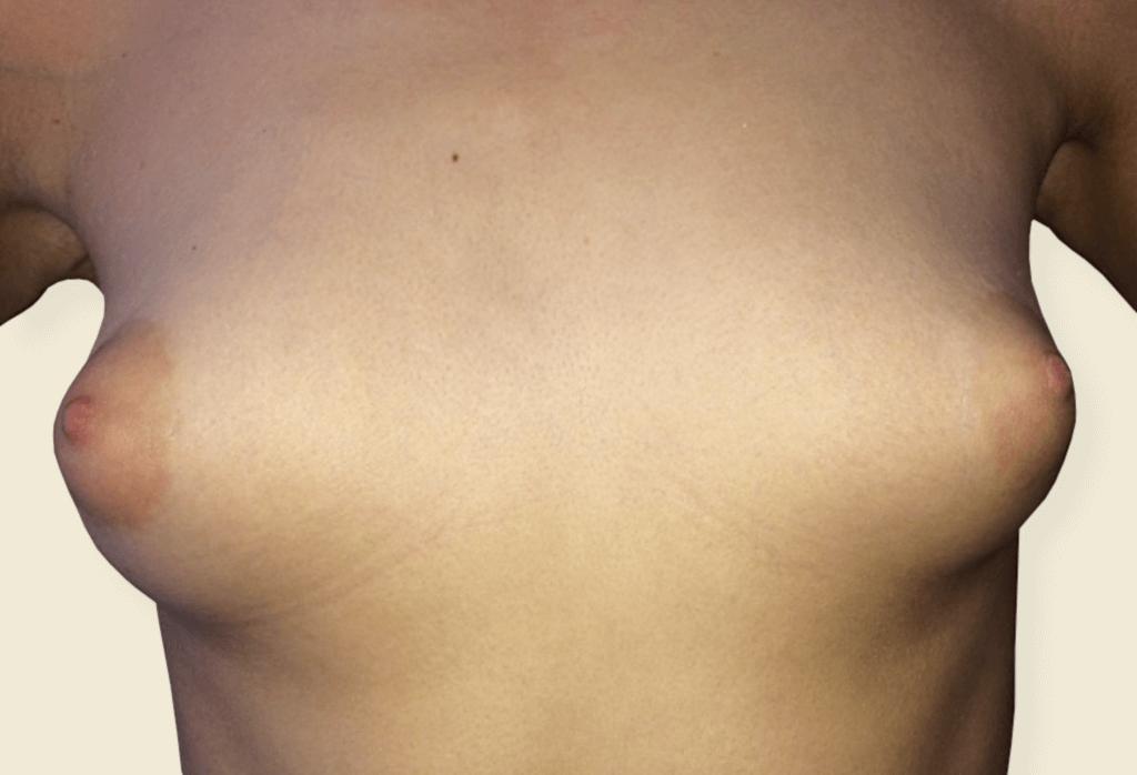 Before-Trudne piersi - wycena indywidualna