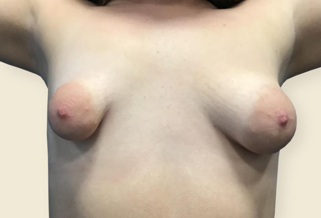 Before-Piersi tubularne