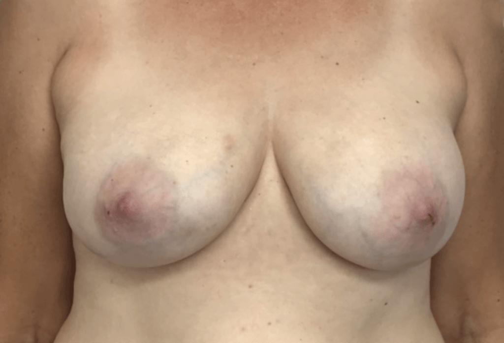 After-Rekonstrukcja piersi od 6 000 zł