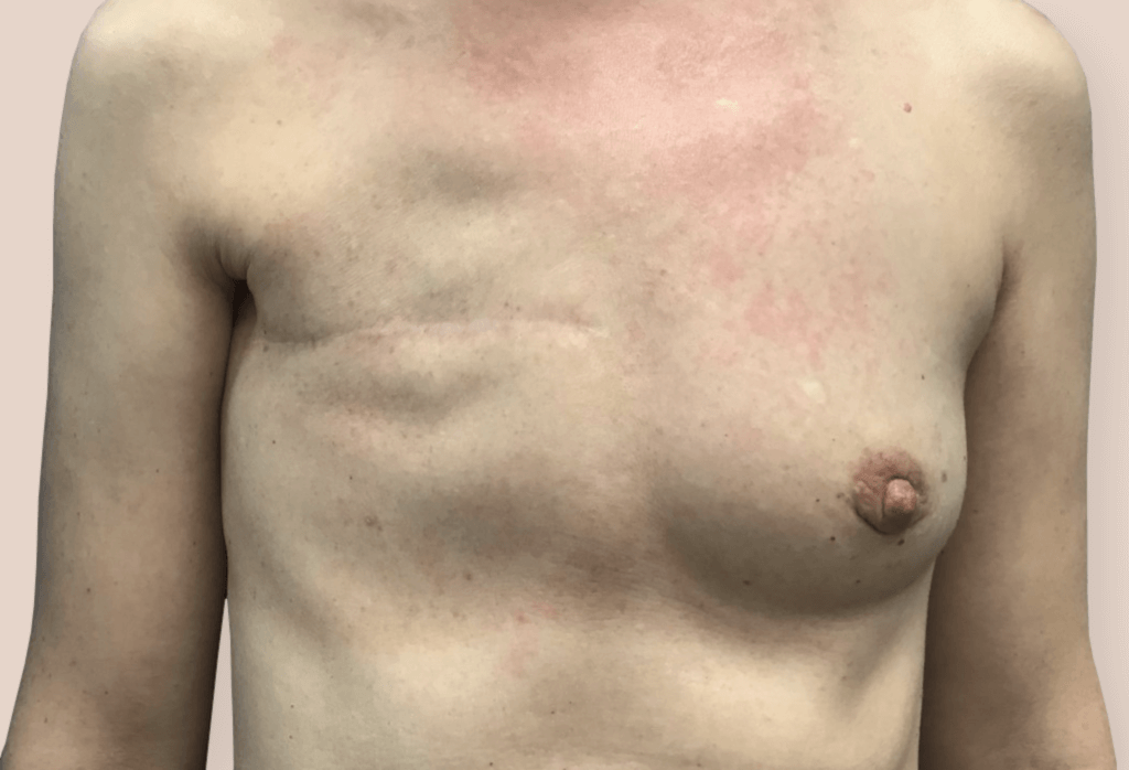 Before-Rekonstrukcja piersi od 6 000 zł