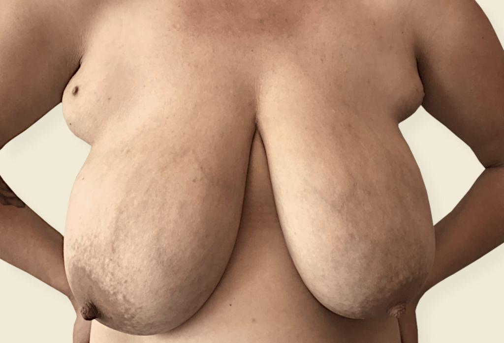 Before-Przerost piersi