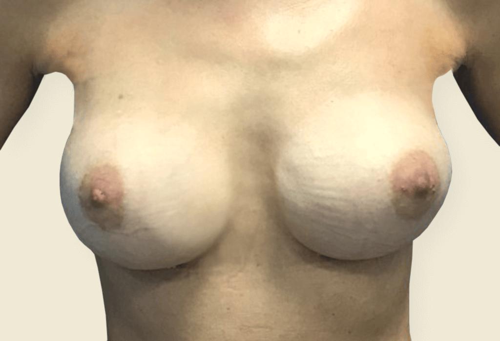 After-Pęknięcie implantów