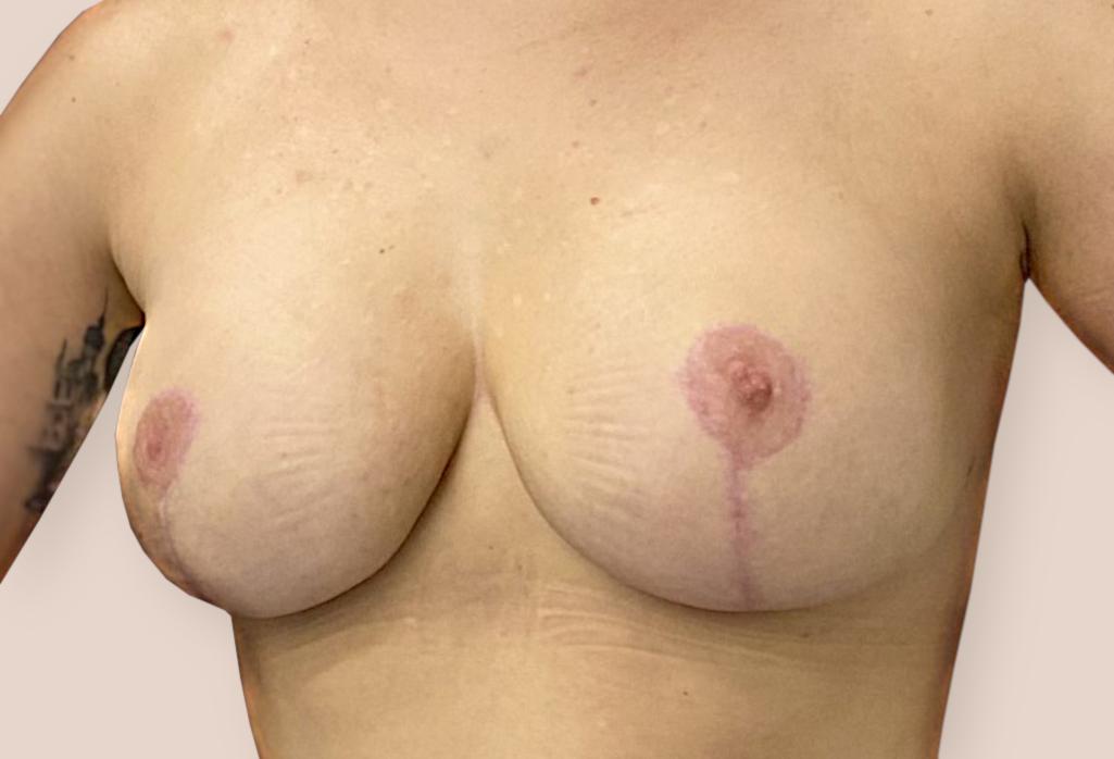 Mutacja BRCA1 — profilaktyczna amputacja piersi
