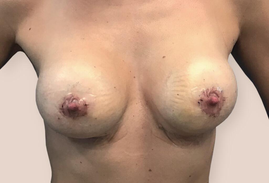 Rekonstrukcja zaniku piersi protezami anatomicznym 260 ml z pozycjonowaniem brodawek sutkowych