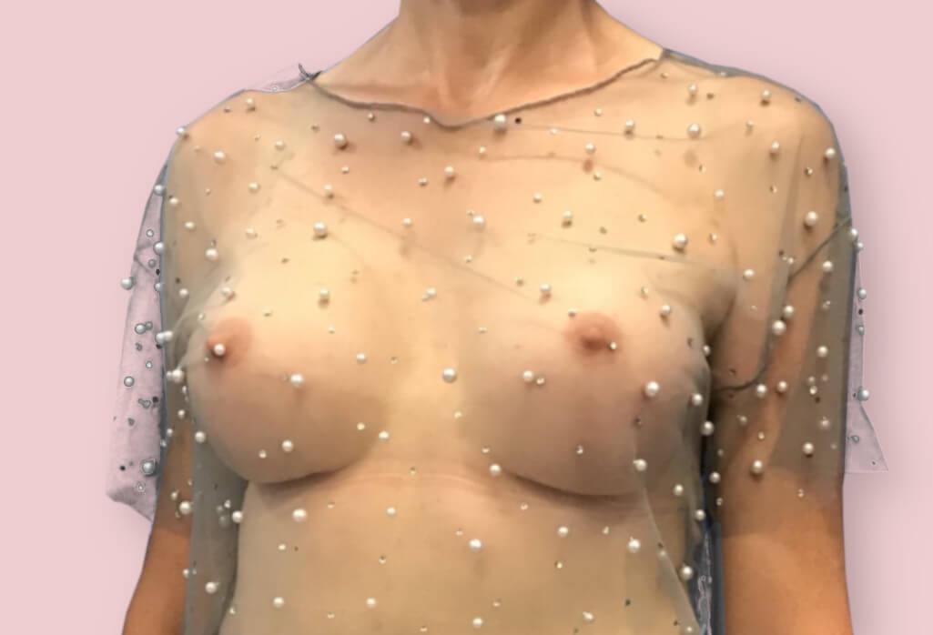 Powiększenie piersi protezami anatomicznym 325 firmy Motiva