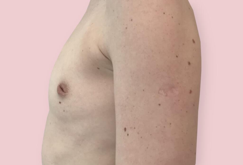 Powiekszenie protezami anatomicznym 420 ml