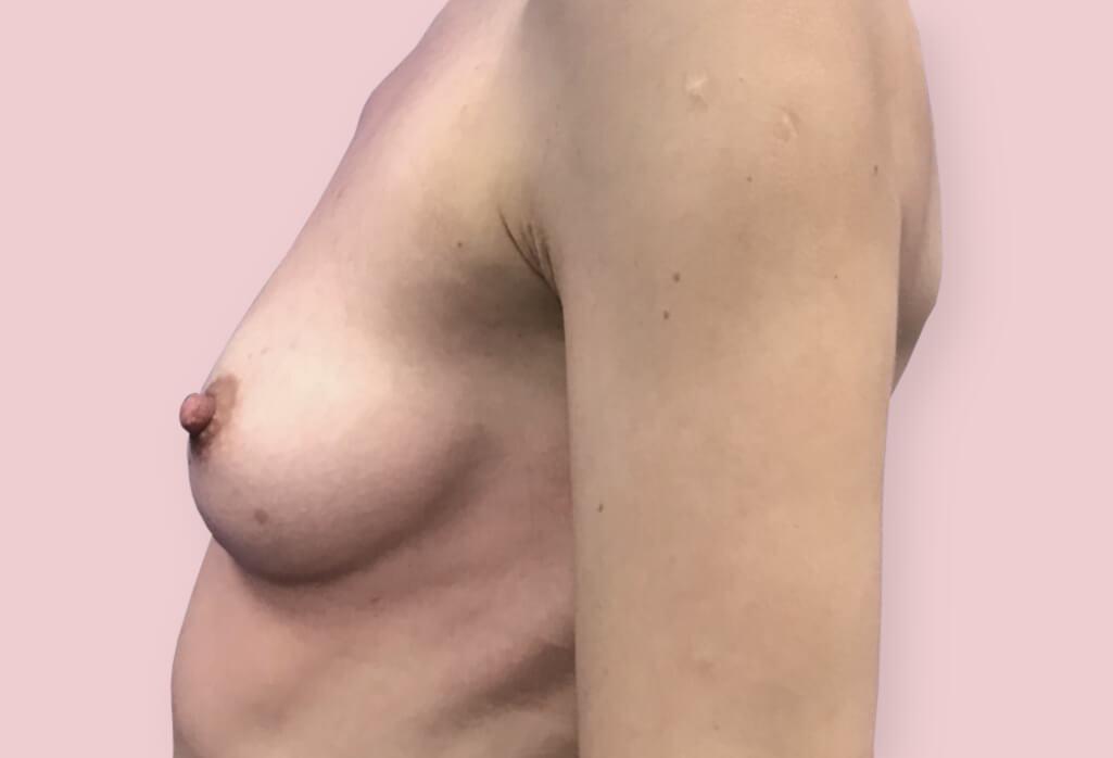 Powiększenie protezami anatomicznym Mentor CPG 225 ml