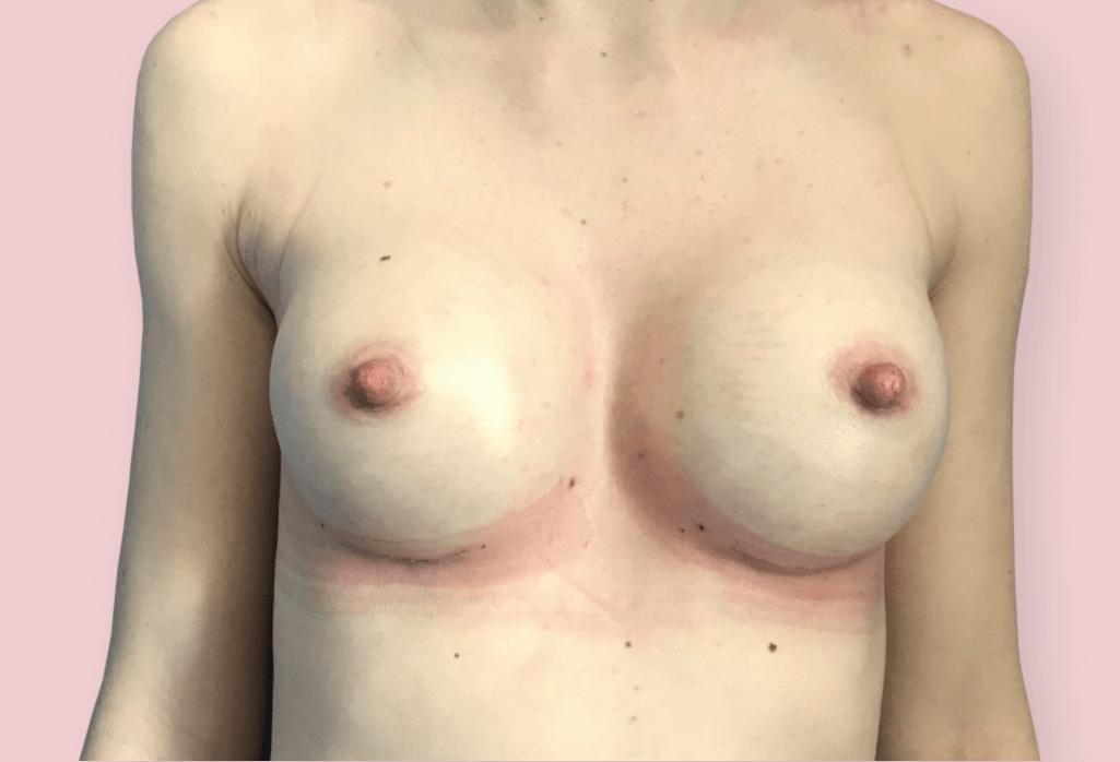 Powiększenie protezami anatomicznym firmy Mentor 290 ml