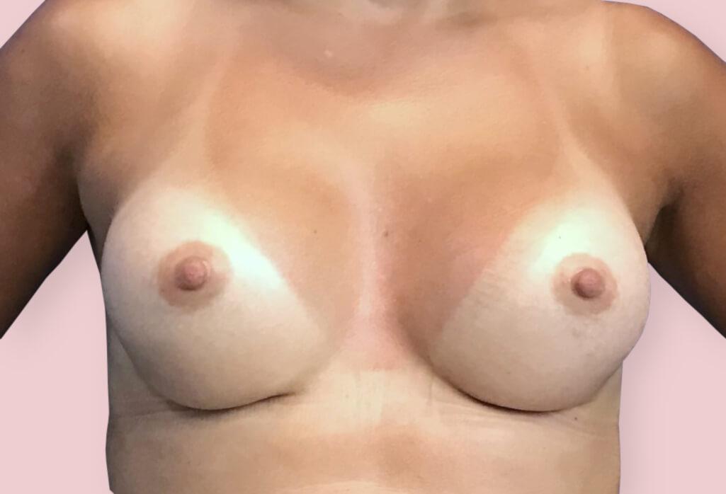 Powiększenie piersi protezami okrągłymi ergonomix 285