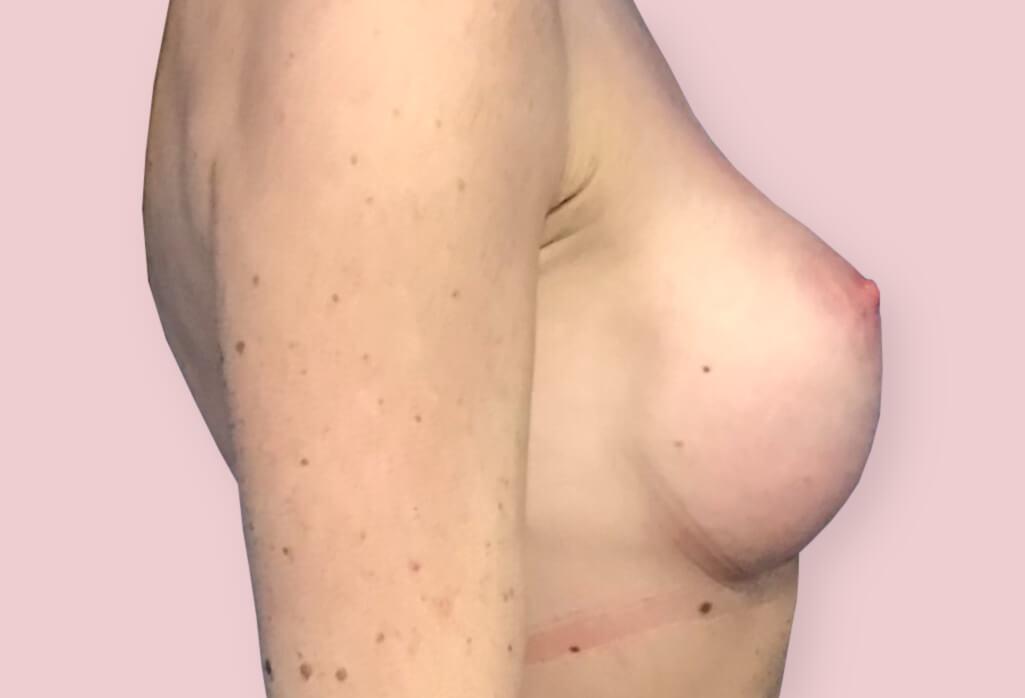 Powiekszenie protezami okrągłymi B-lite 390 ml