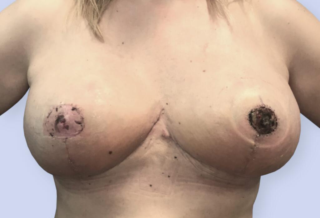 Redukcja piersi z wolnym przeszczepem brodawek