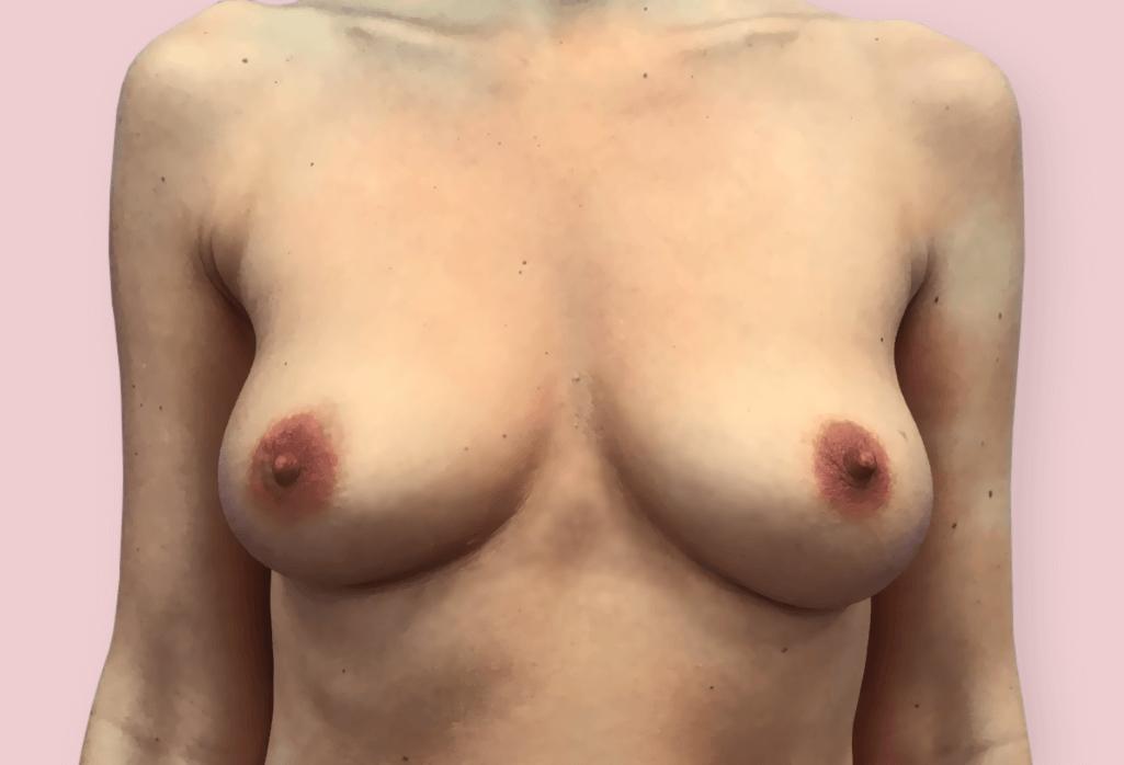 Symetryzacja i powiększenie piersi różnymi protezami okraglymi — Motiva Ergonomix 255 i 275